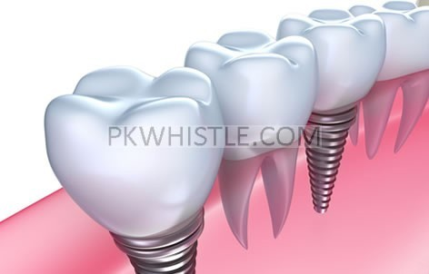 No Gap Dentists Offers Cheap Dental Implants in Sydney